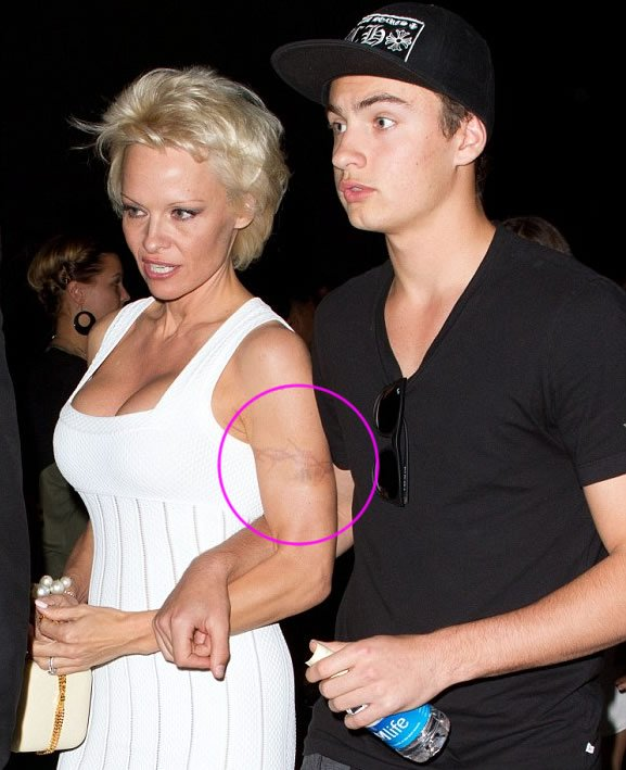 Pamela Anderson Finally Removing Old-School Barbed Wire Tattoo